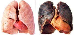 Stoppen met roken in Breda en omgeving